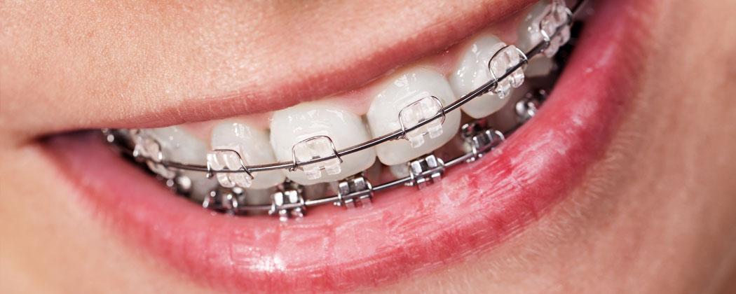 braces_main