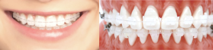 tooth_coloured_braces